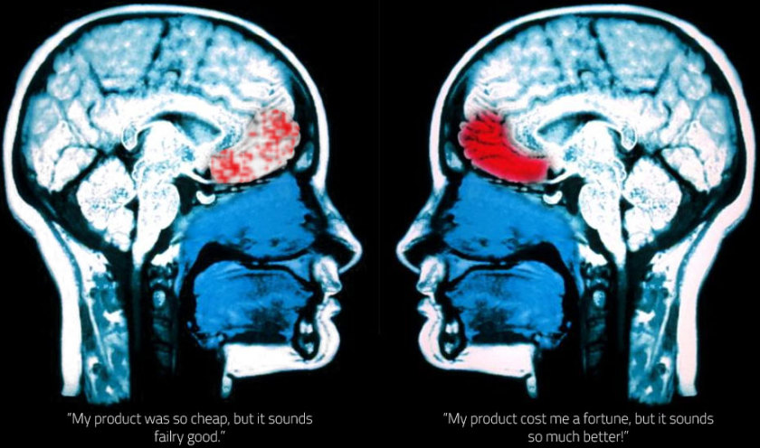 Frontal Cortex Activity during MRI scan